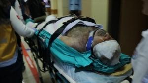 Esat Kabaklı trafik kazasında yaralandı